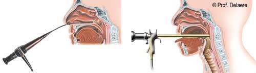 laryngoscopie