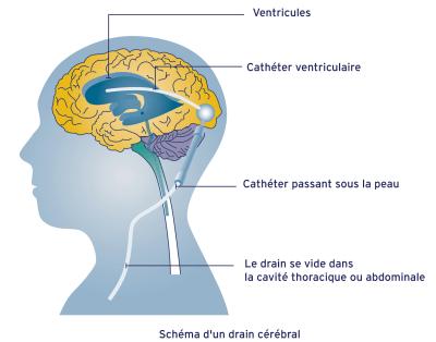 Drain cérébral