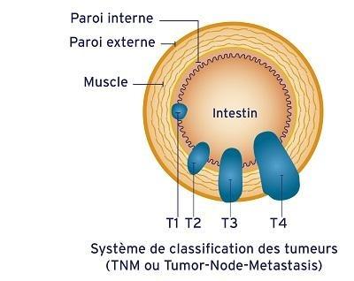 Classification tumeurs cancer du côlon