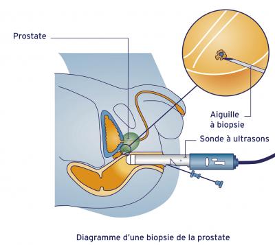 Examens et dépistage du cancer de la prostate