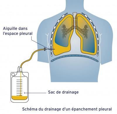 drainage-épanchement-pleural