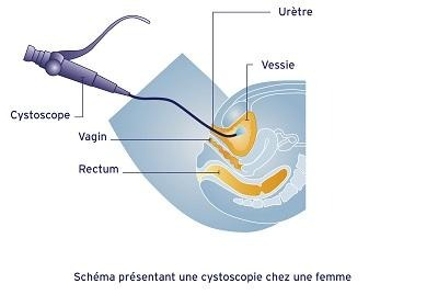 cystoscopie chez la femme