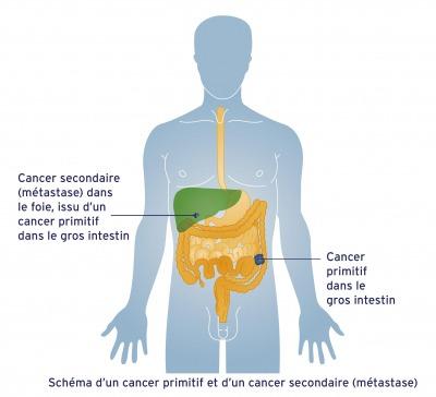 cancer-primitif-et-secondaire
