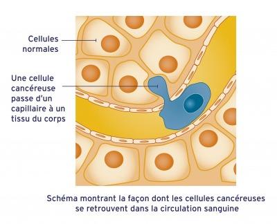 cancer-dans-circulation-sanguine