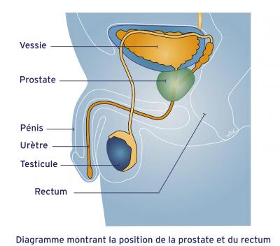 Position de la prostate et du rectum