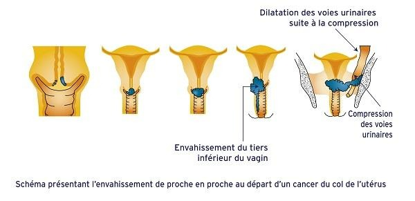 Envahissement du cancer du col de l'utérus