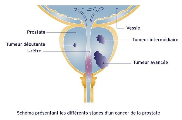 Bilan d'extension du cancer de la prostate