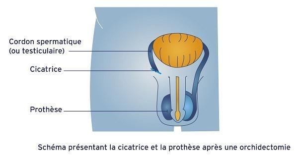 Cicatrice et prothèse après l'ablation du testicule