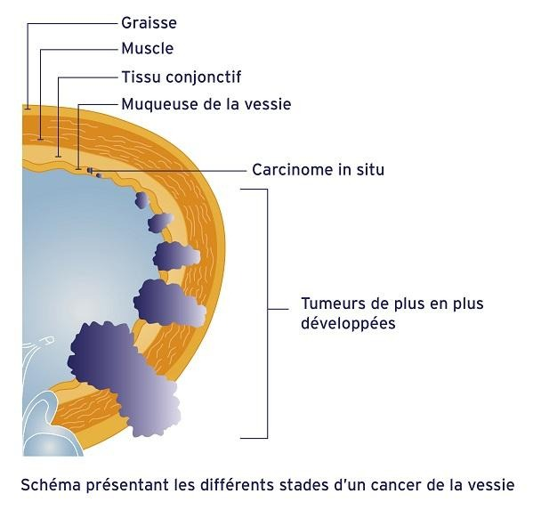 stades cancer de la vessie